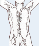 Lymphatic System is part of Immune System