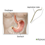 The Importance of Stomach Acid