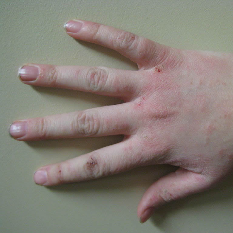 Dermatitis, Psoriasis, Eczema and Rosacea